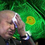 Hugo Chávez podría ser sanado del cáncer